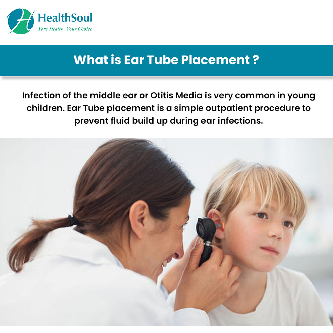 What is Ear Tube Placement?