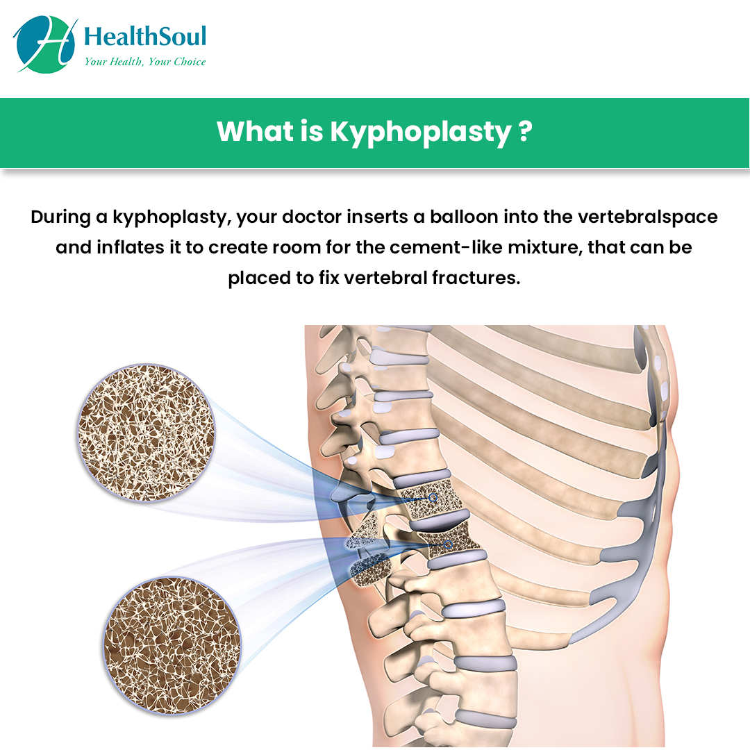 What is Kypnoplasty?