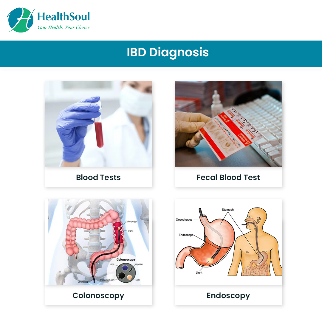 IBD Diagnosis