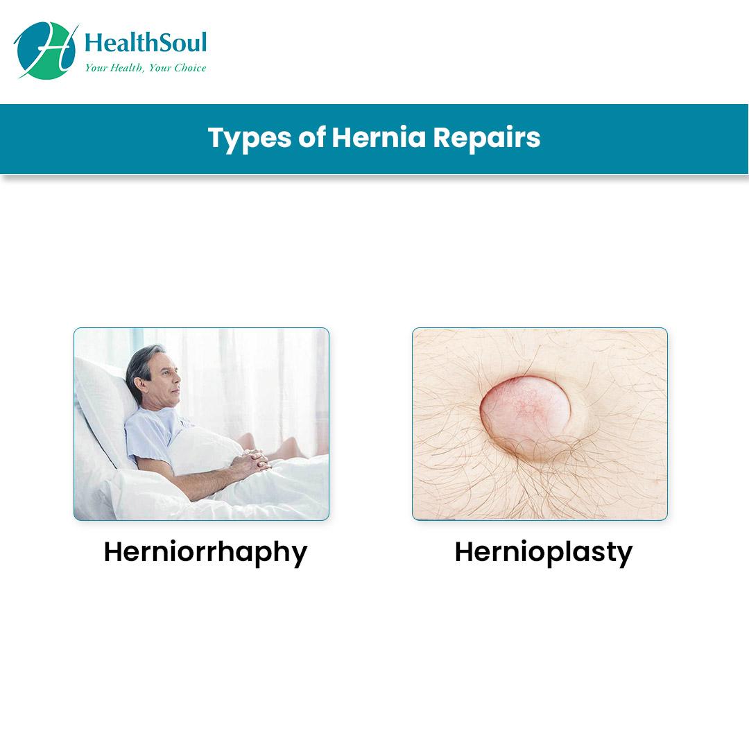Types of Hernia Repairs