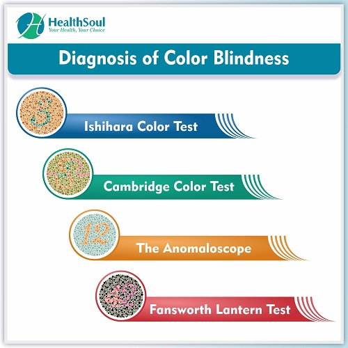 Diagnosis of Color Blindness | HealthSoul