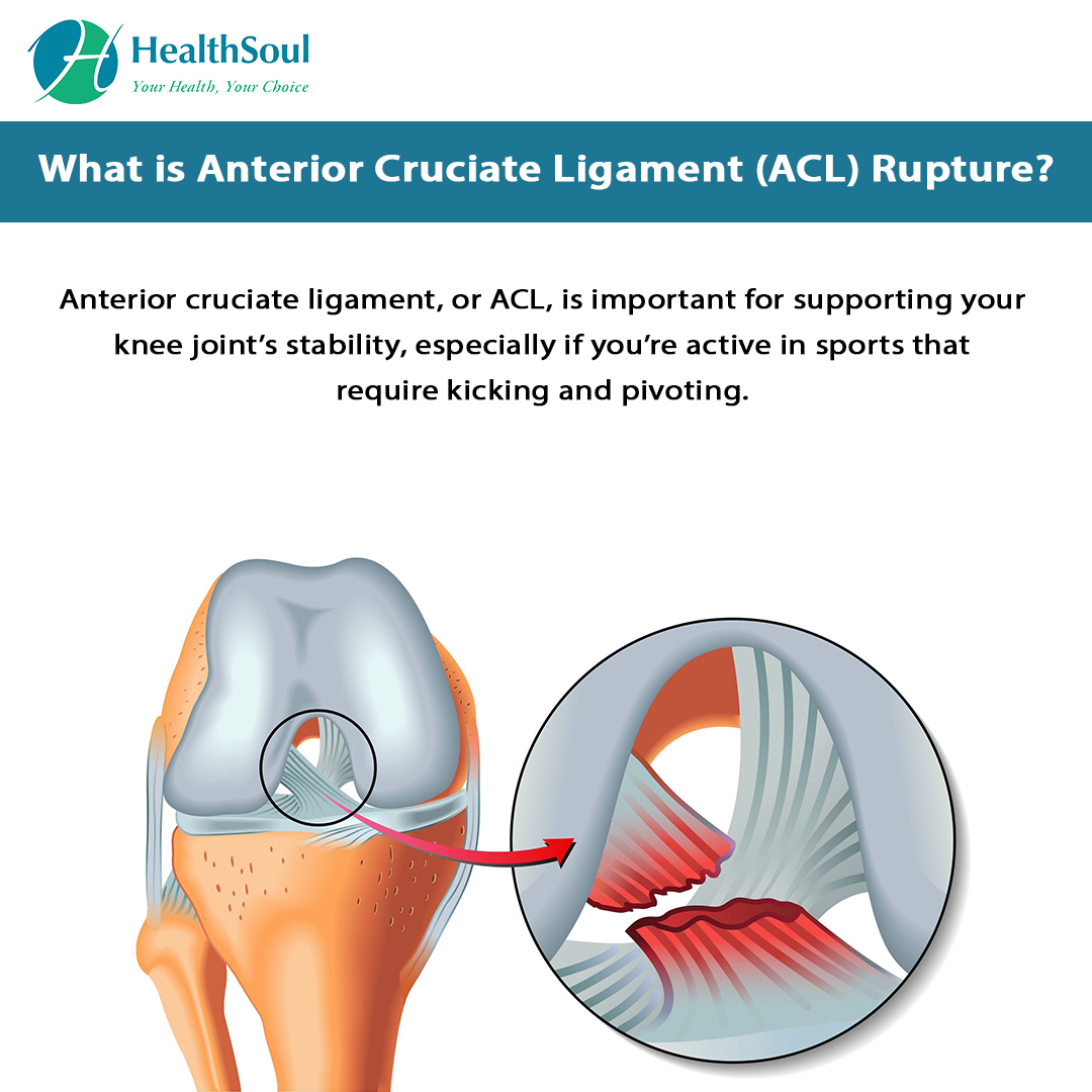 What is Anterior Cruciate Ligament (ACL) Rupture?