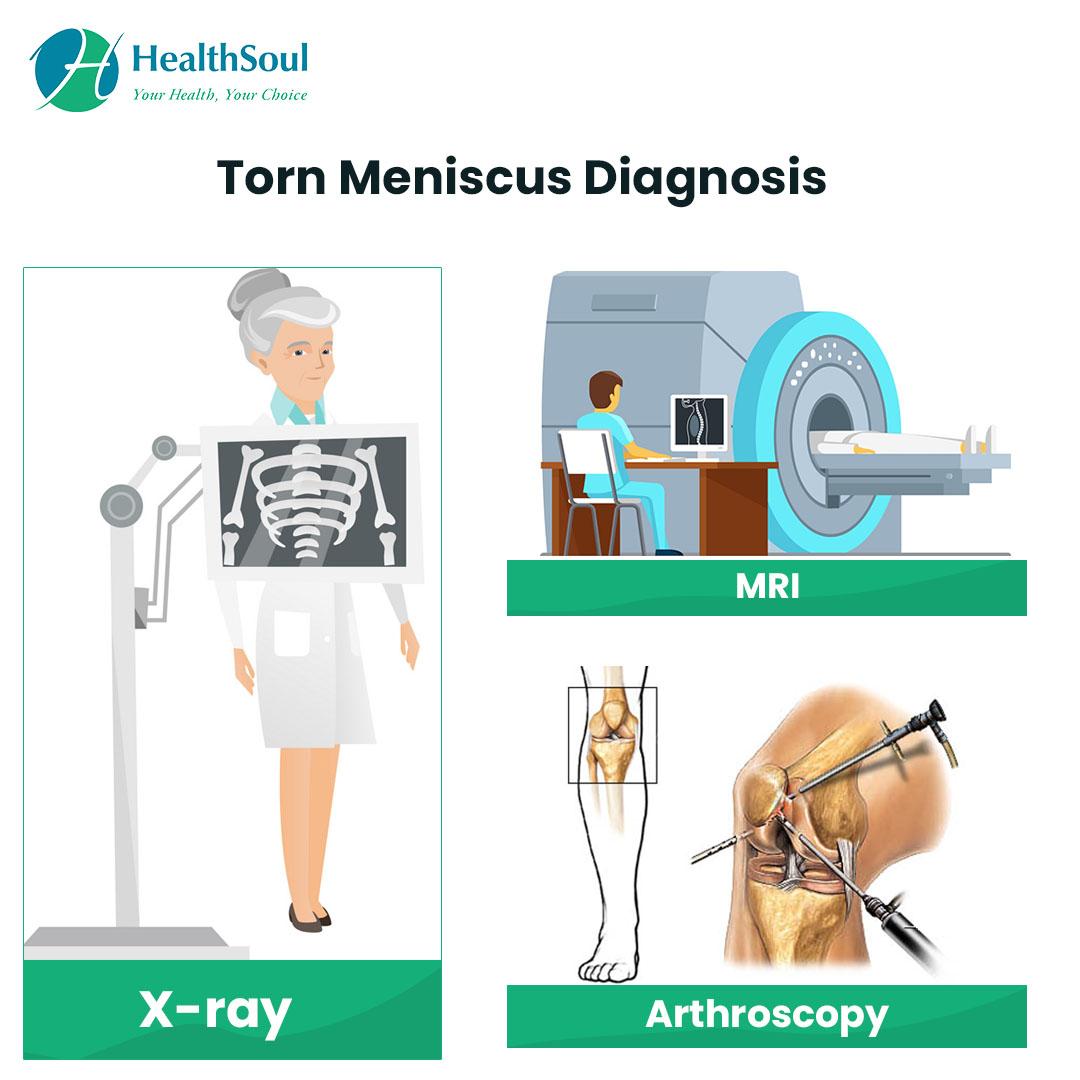 Torn Meniscus Diagnosis