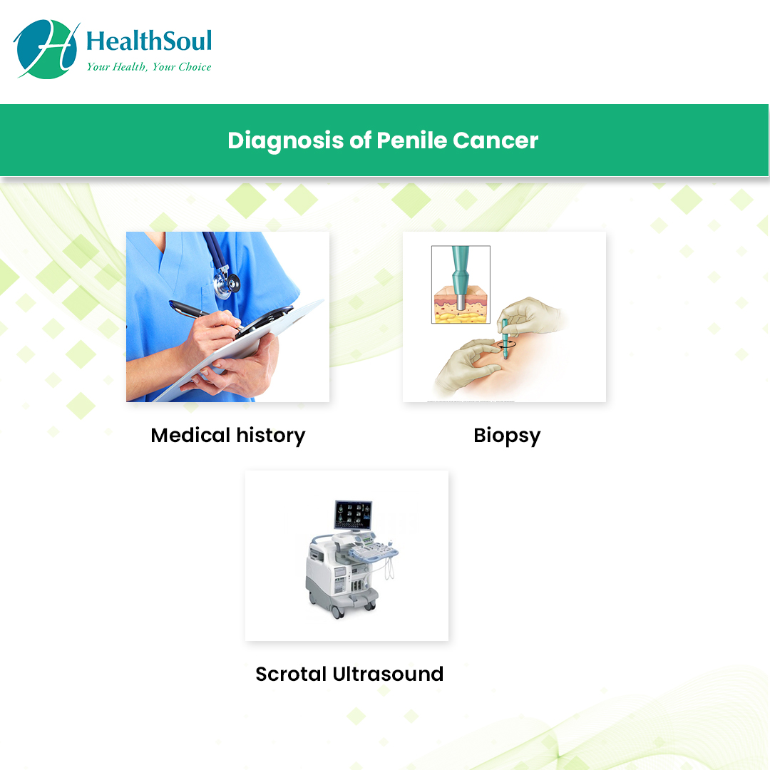 Diagnosis of Penile Cancer