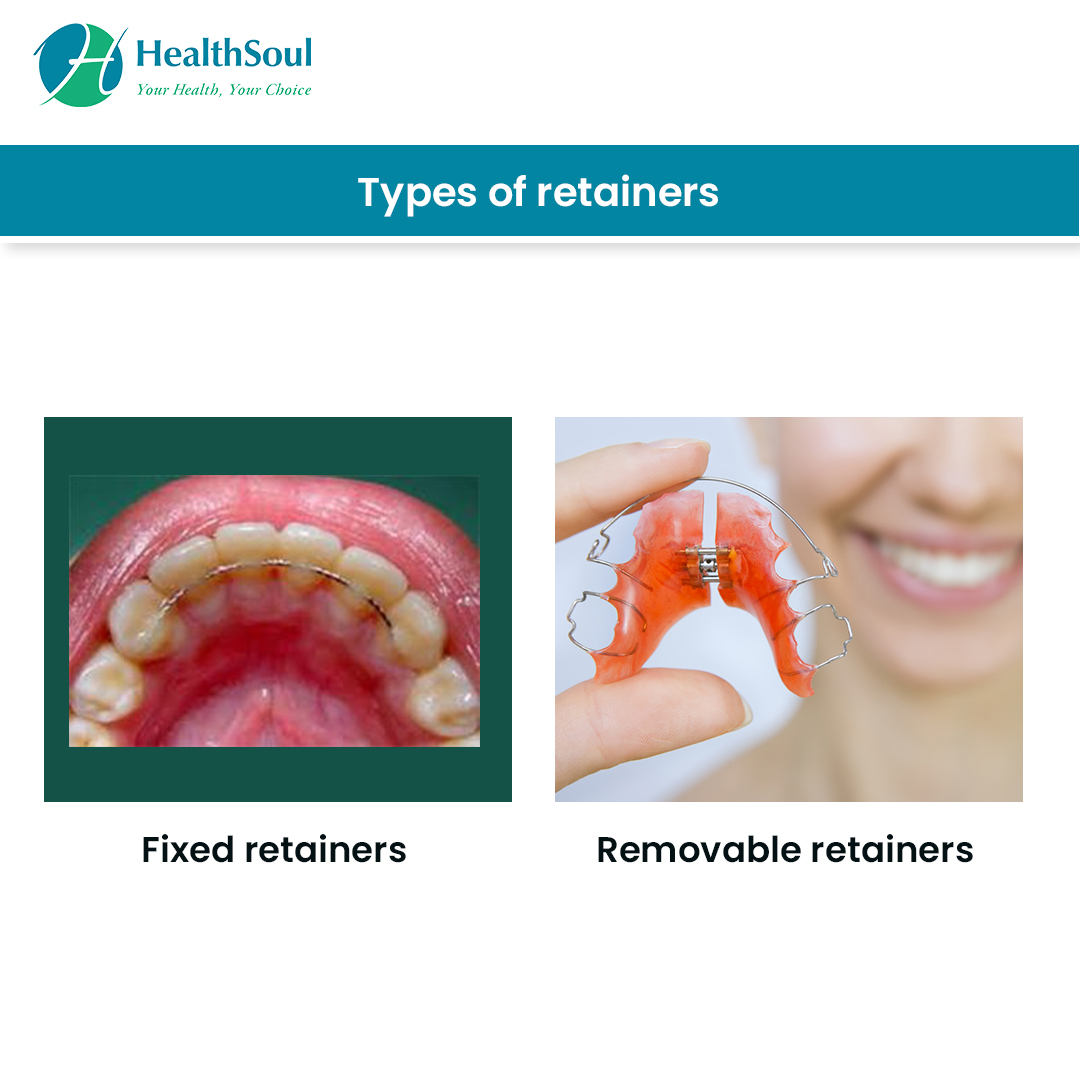 Types of Dental Retainers
