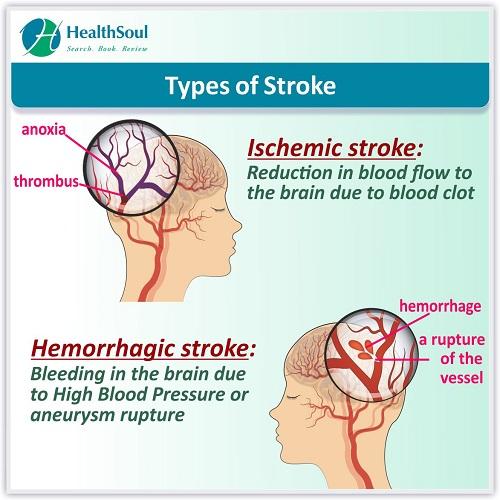Types of Stroke   HealthSoul