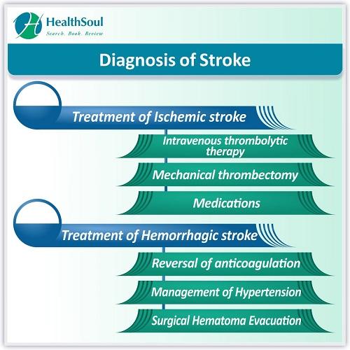 Diagnosis of Stroke   HealthSoul