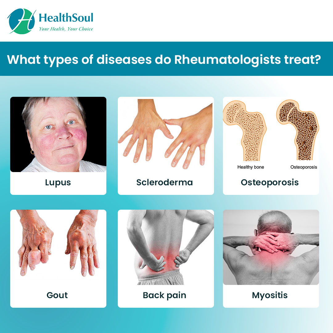 What types of diseases do Rheuomatologist treat?
