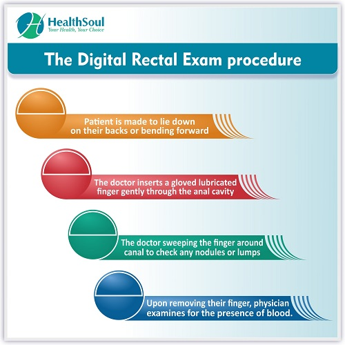 The Digital Rectal Exam Procedure | HealthSoul