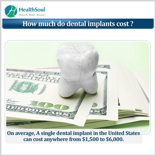 How much do dental implants cost? | HealthSoul