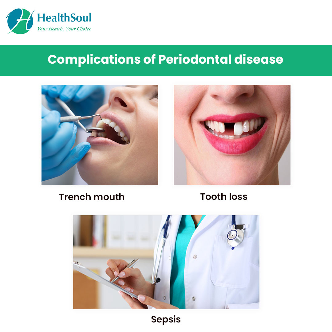 Complications of periodontal disease