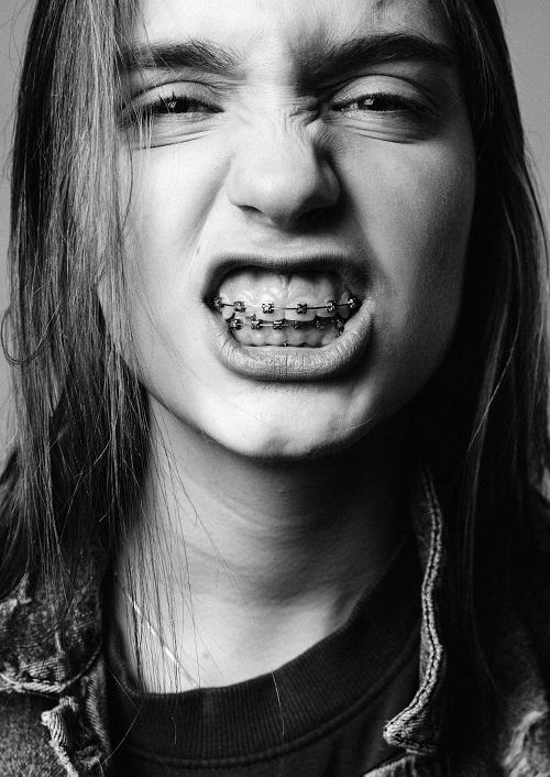 Type Of Braces | HealthSoul