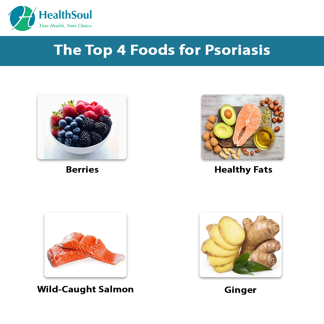 The Top 4 Foods for psoriasis