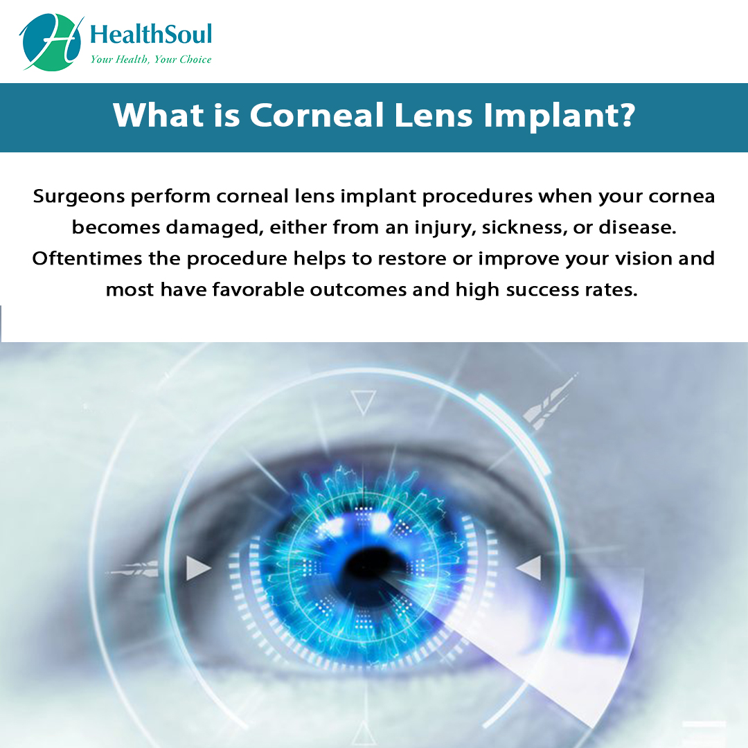 What is Corneal Lens Implant?
