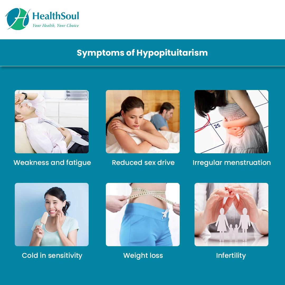 Symptoms of Hypopituitarism