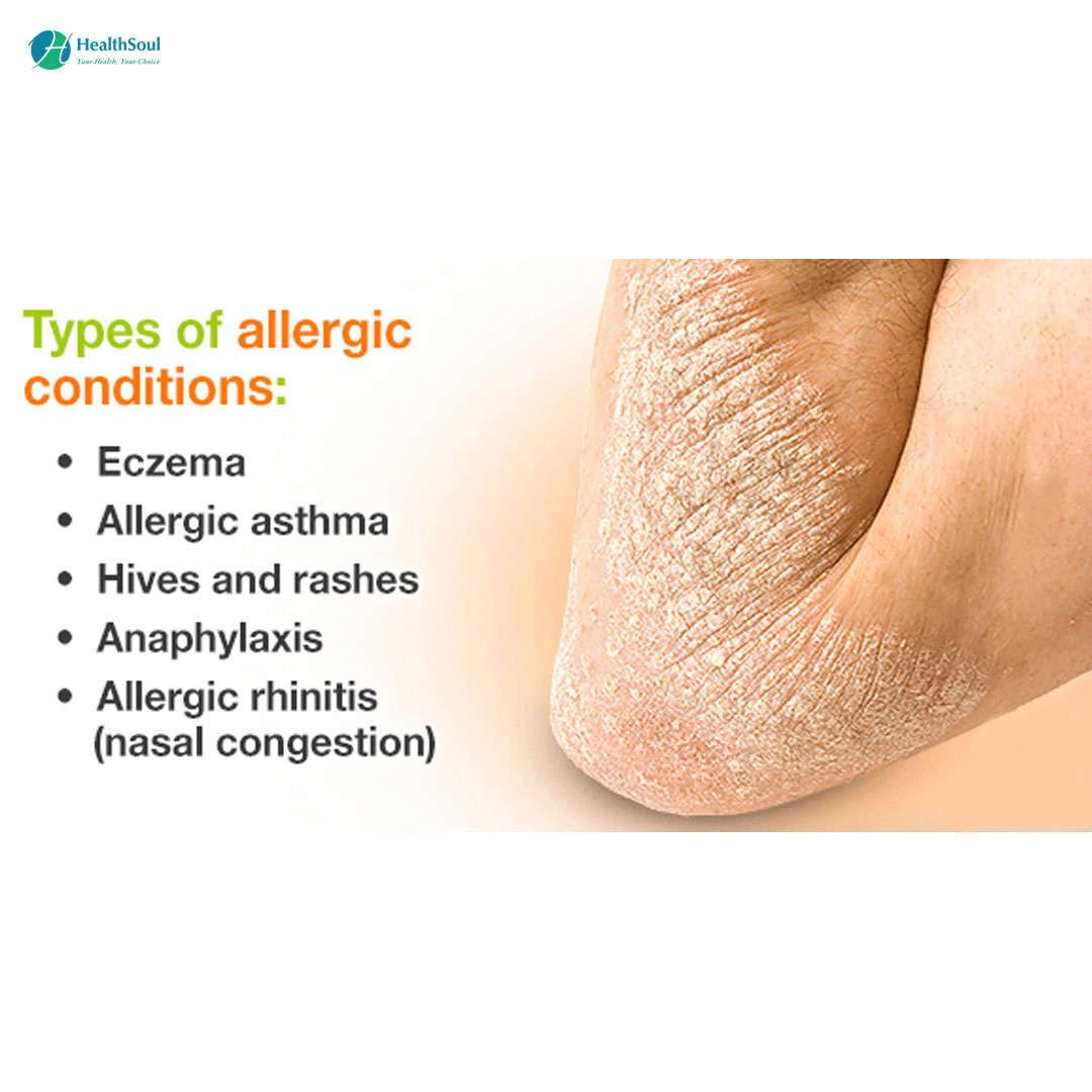 TYPES OF ALLERGIC CONDITIONS?