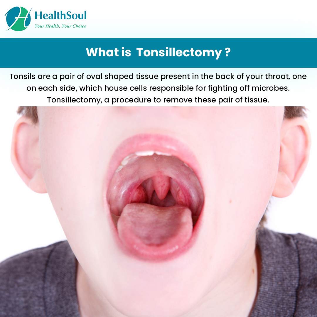 What is Tonsillectomy?