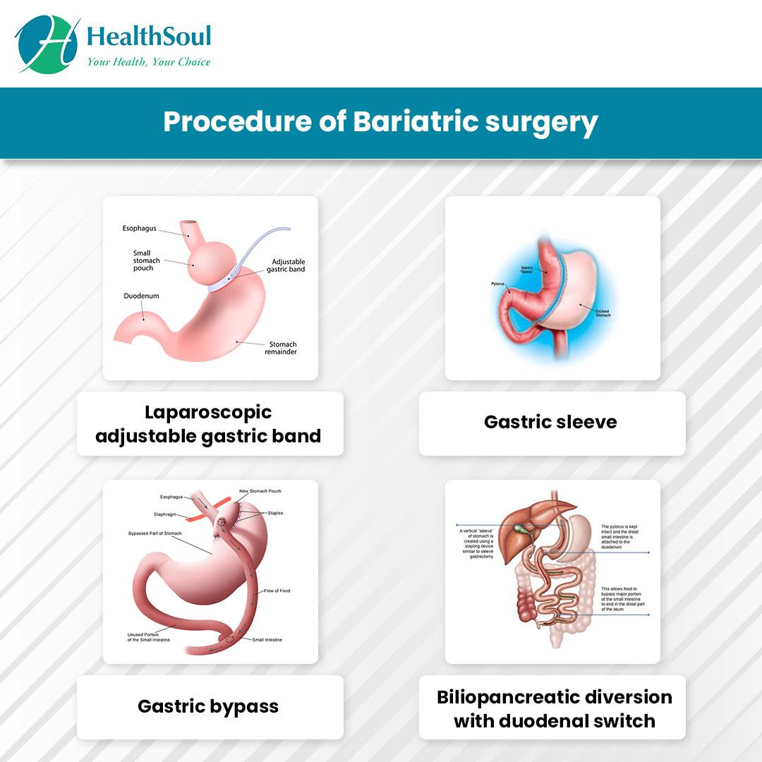 Procedure of Bariatric surgery